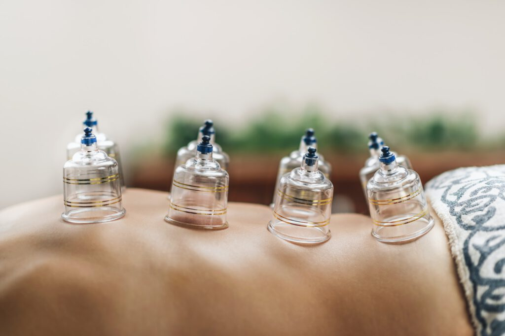 Hijama Cupping Treatment on Women's Back